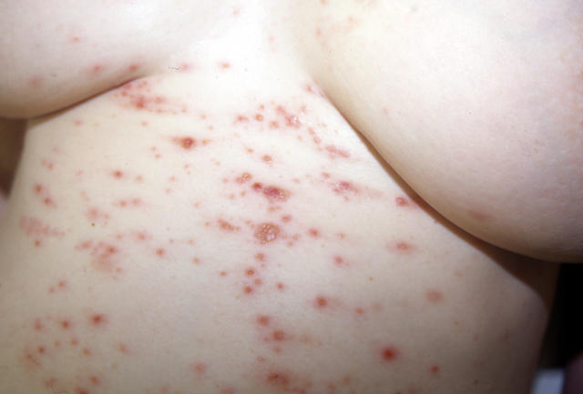 SKIN DISEASES IN PREGNANCY - Herpes gestationis picture ...