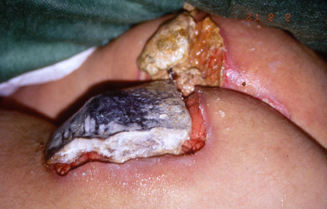 What do aids lesions look like thought
