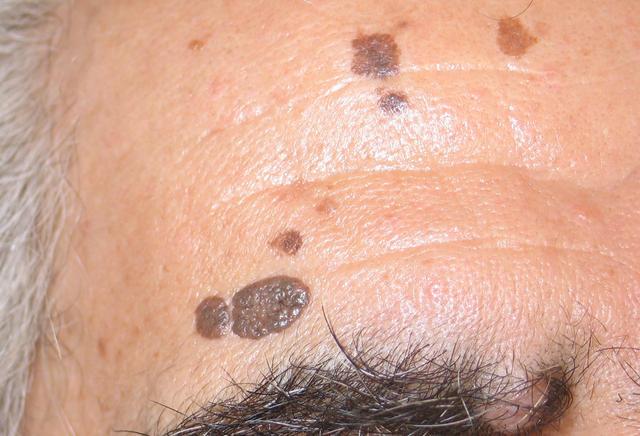 Benign Skin Lesions Nevi Cysts Seborrheic Keratosis ...