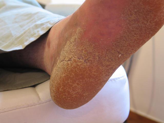 El tratamiento de la psoriasis en el sanatorio istra