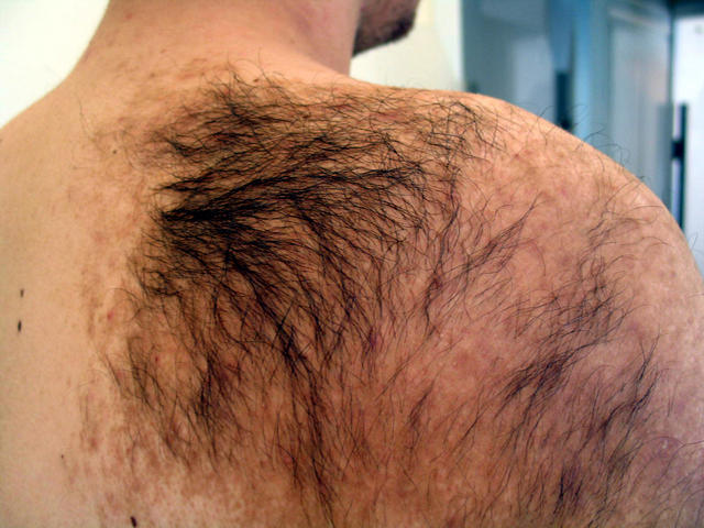 Giant hairy 'Bathing trunk' nevus with multiple satellite ...