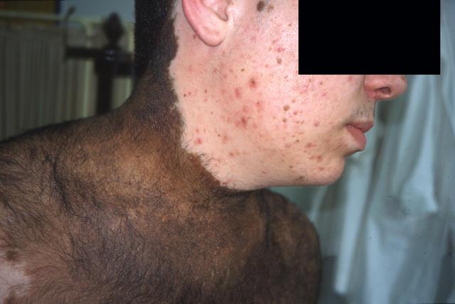 Hairy Skin 14
