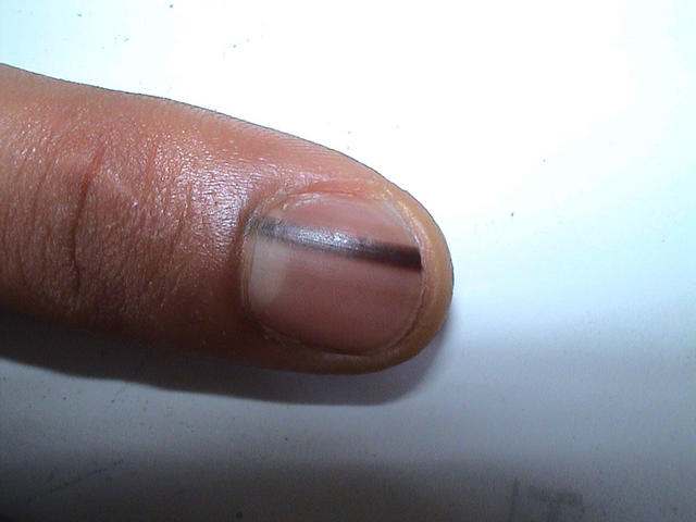 NAIL DISEASES - Linear Pigmented Nevus Picture | Hellenic Dermatological Atlas - Over 2700 ...