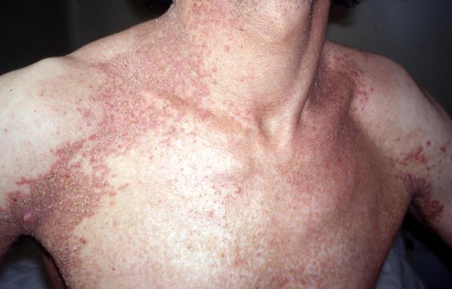 darier disease #11