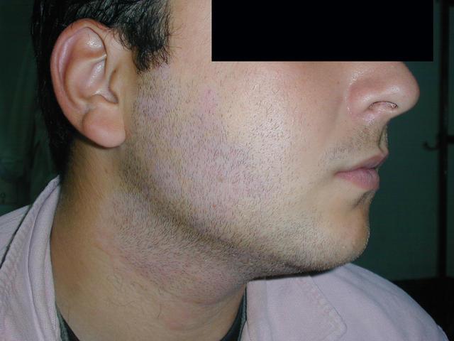 Postinflammatory Hyperpigmentation: Background ...
