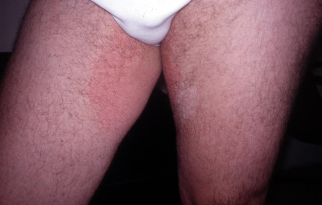SUPERFICIAL FUNGAL INFECTIONS - Tinea cruris due to E