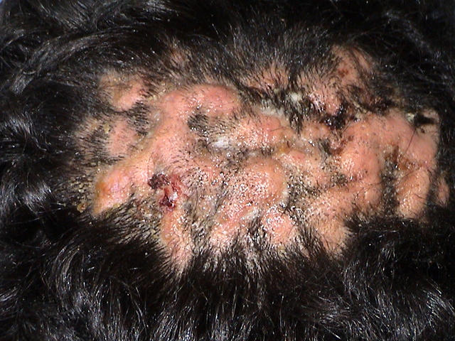 Folliculitis - Pictures, Symptoms, Causes, Types, Treatment