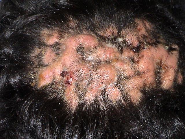 Folliculitis - Pictures, Symptoms, Causes, Types, Treatment