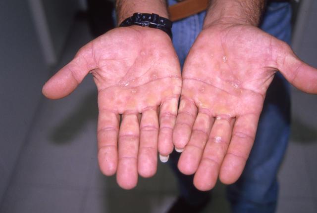 типичная сыпь на ладонях при сифилисе