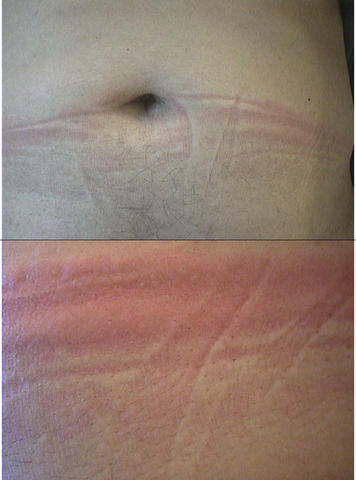 Can Vasculitis Be Cured Naturally
