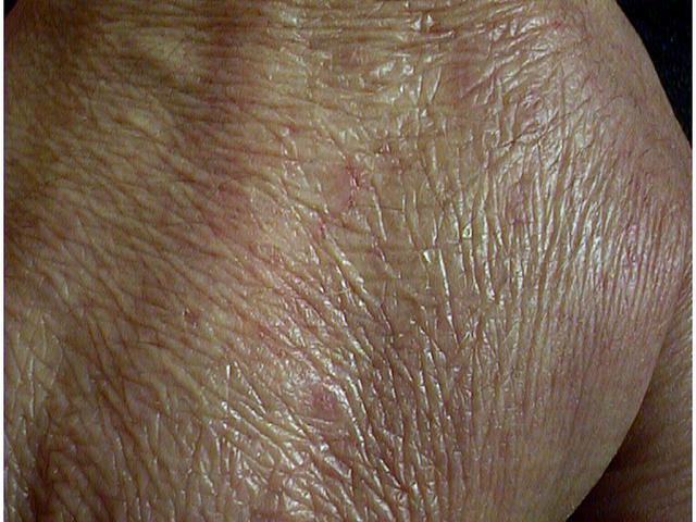 steroid skin thinning treatment