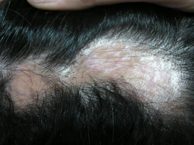 Cicatricial Alopecia on Hair Diseases   Alopecia Cicatricial Picture   Hellenic Dermatological