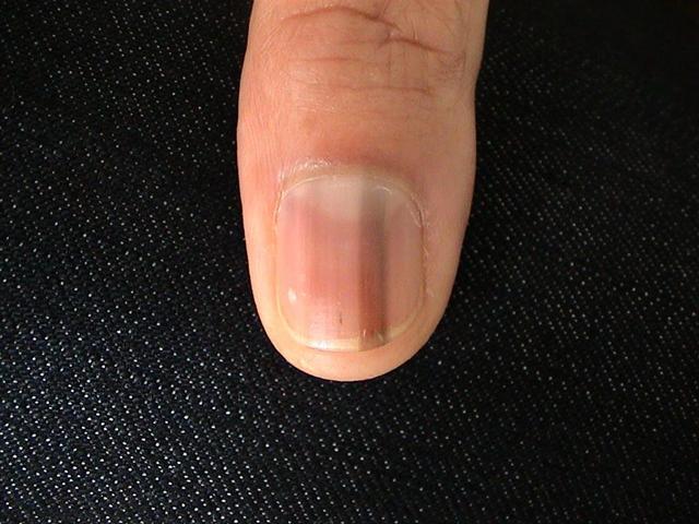 Nail Diseases Melanonychia Longitudinal