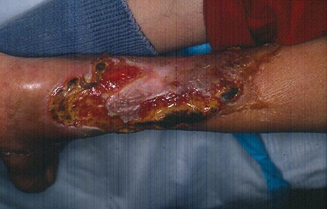 Diabetes Skin Problems: Scleroderma, Vitiligo, Dermopathy