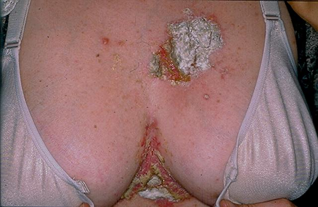 GENODERMATOSES - Hailey-Hailey disease