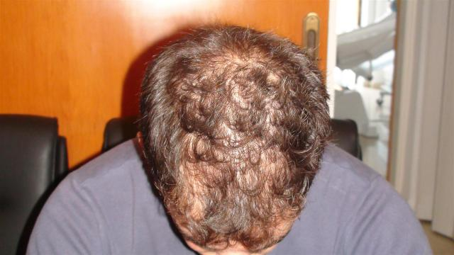 Hair diseases androgenetic alopecia picture hellenic hair diseases androgenetic alopecia urmus Choice Image